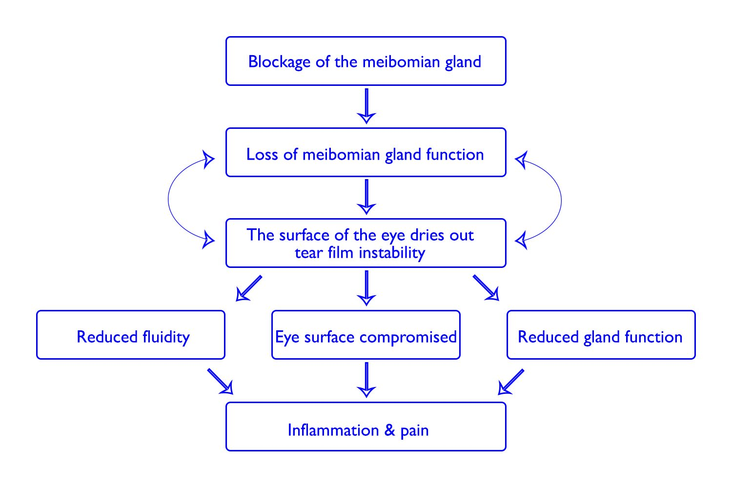 An illustration of how meibomian gland dysfunction develops. Adapted from Pathology of the Meibomian Gland Dysfunction presentation (1).